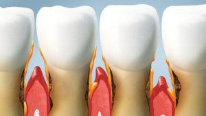 piorrea-parodontologia