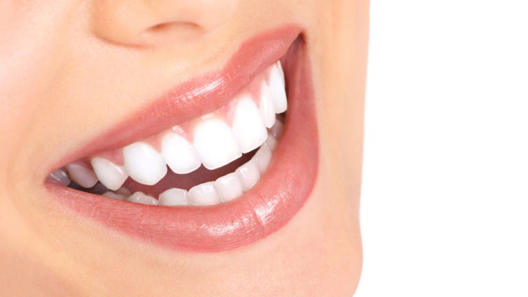 impianti-dentali-a-carico-immediato-o-a-carico-differito