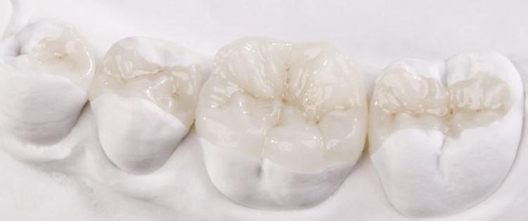 intarsi-dentali-roma