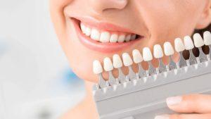colore-faccette-dentali-bianche-o-naturali