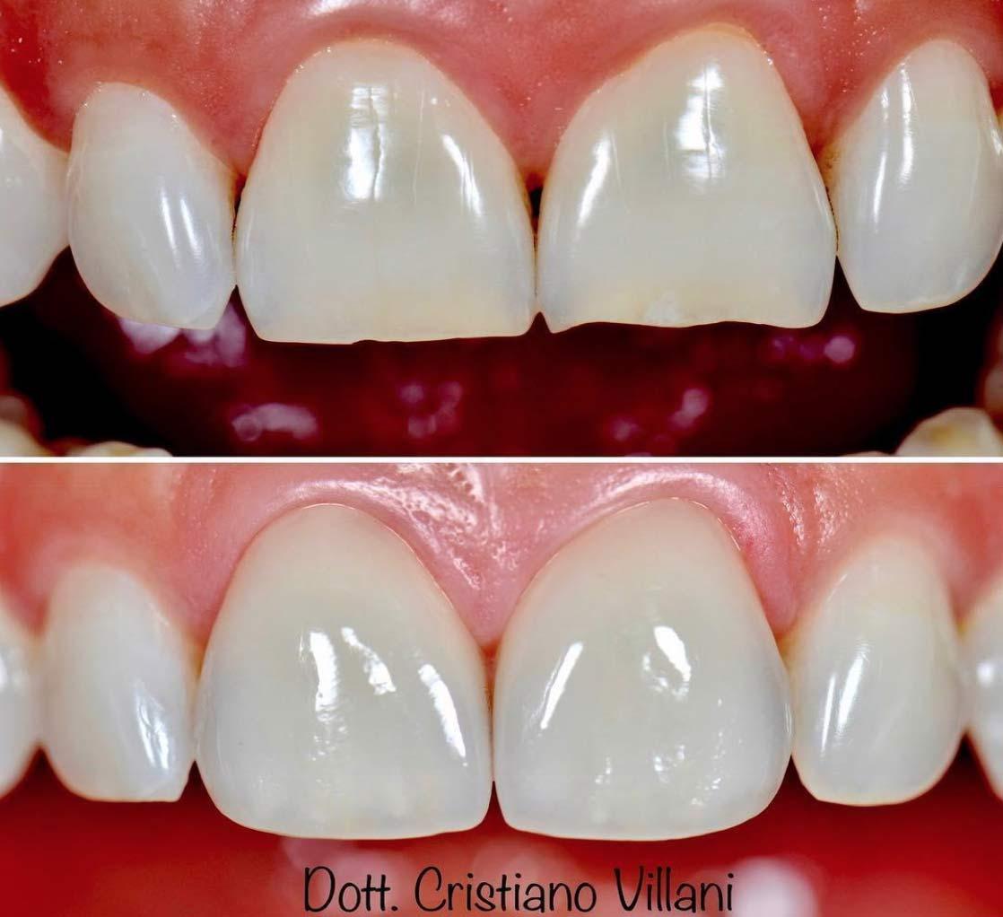 faccette-dentali-bianco-americano