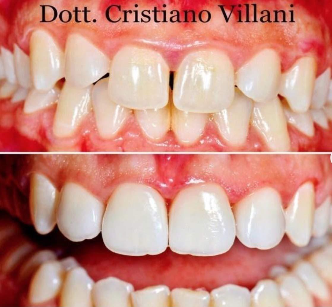 faccette-dentali-bianco-naturale