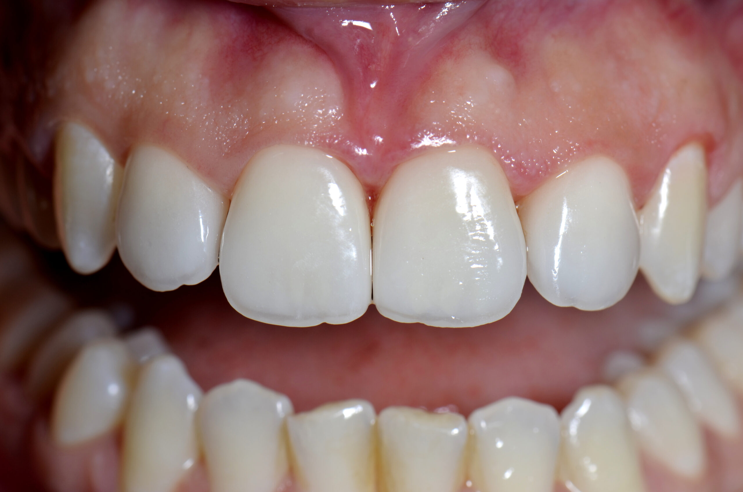 After-Faccette Dentali