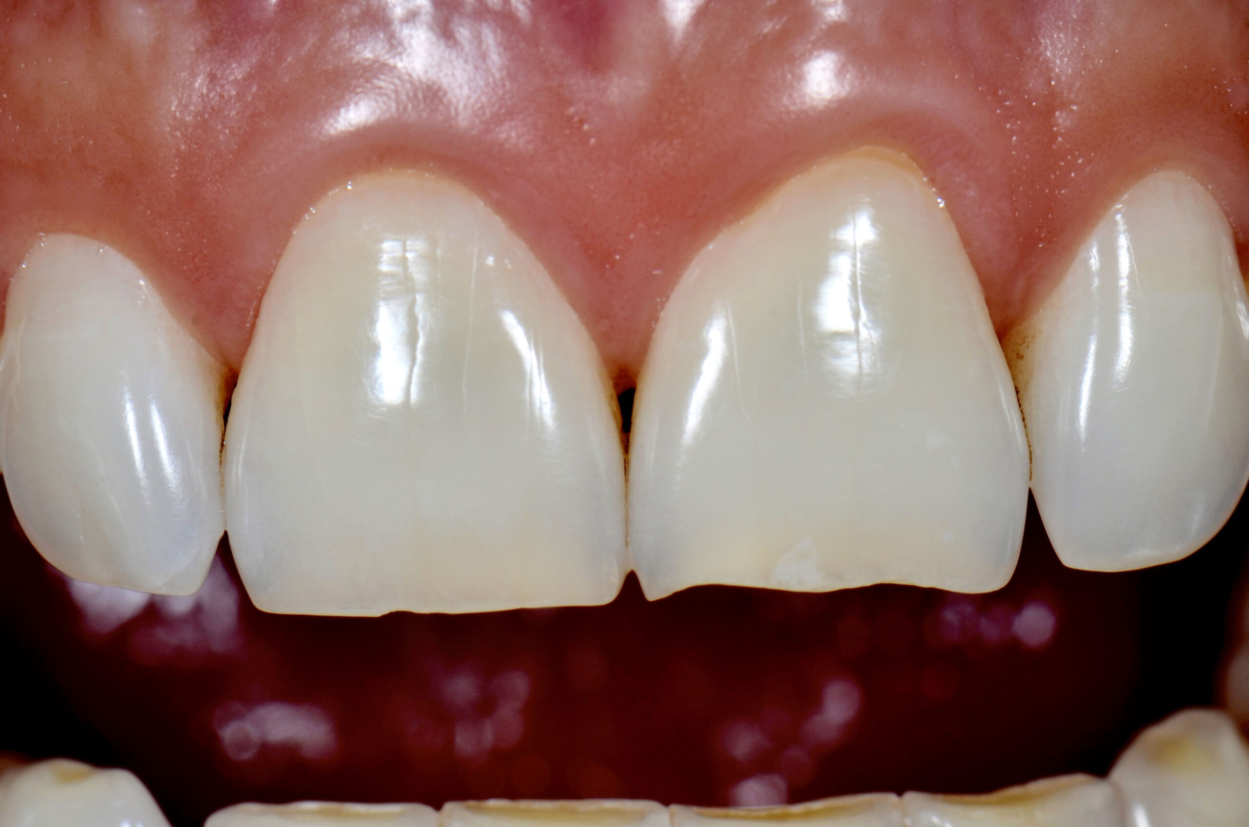 Before-Faccette Dentali