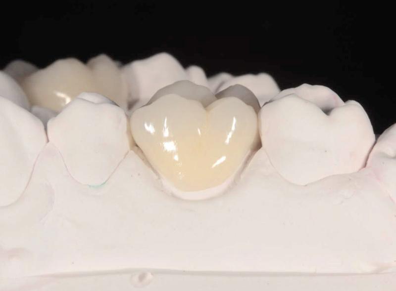 corona-dentale-zirconia