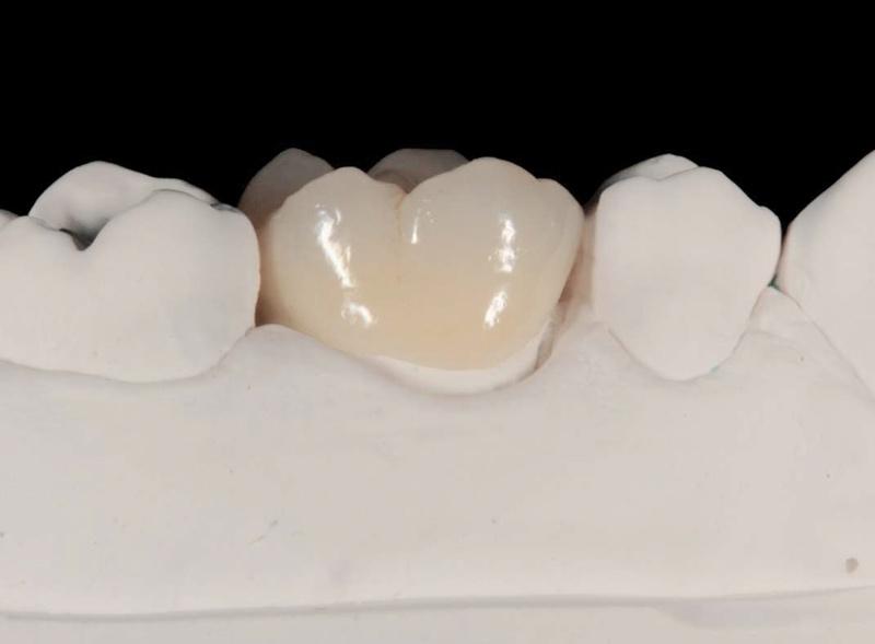 corona-dentale-ceramica-integrale