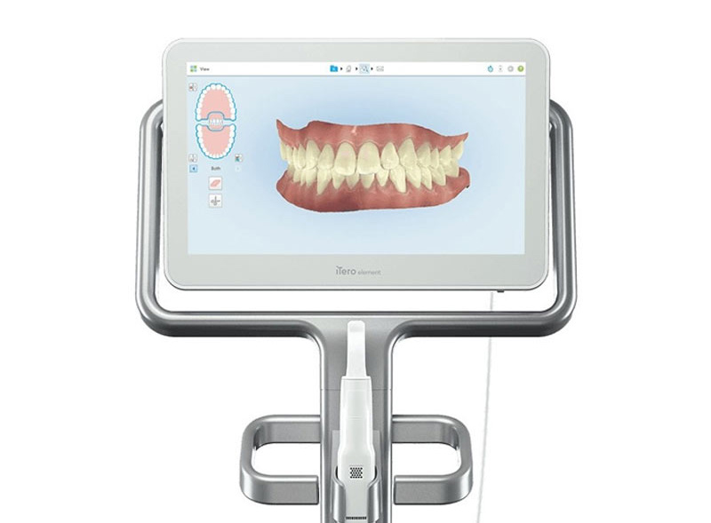 dentista-roma-impronta-digitale-scanner