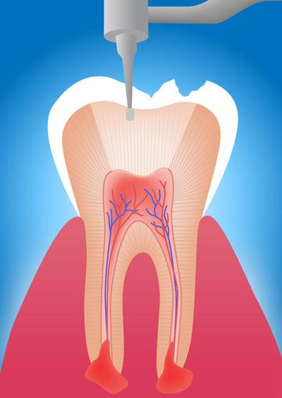 devitalizzazione-dente