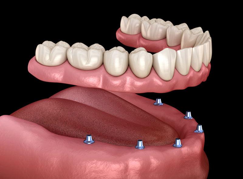 all-on-six-implantologia-roma