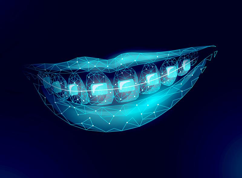 apparecchi-dentali-fissi-apparecchi-ortodontici-mobili-roma