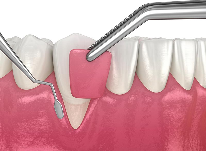 chirurgia-mucogengivale-studio-dentistico-roma