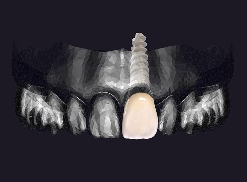 implantologia-roma-san-giovanni