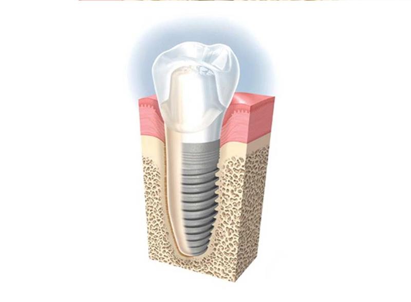 implantologo-roma