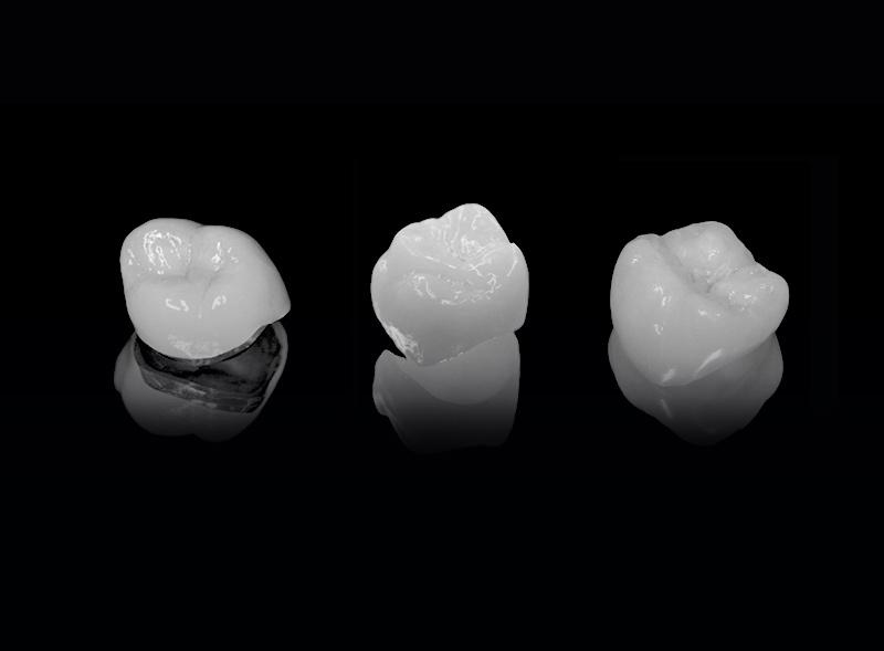 materiali-corone-dentali-roma