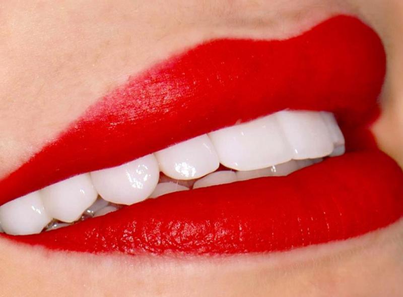 materiali-faccette-dentali