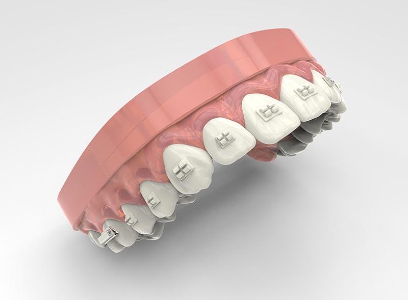 ortodonzia-adolescenza-apparecchi-estetici-roma