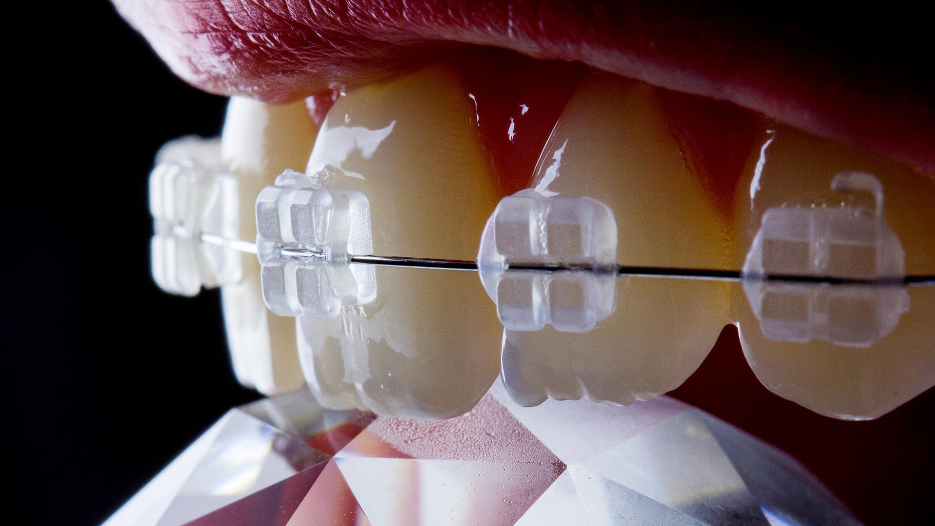 ortodonzia-roma-dentista-ortodonzista-san-giovanni