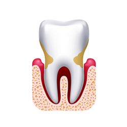 parodontite-moderata