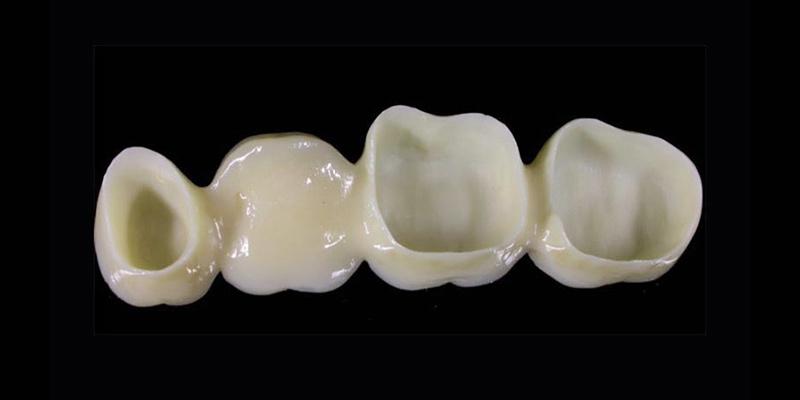ponte-dentale-restauro-protesico-roma