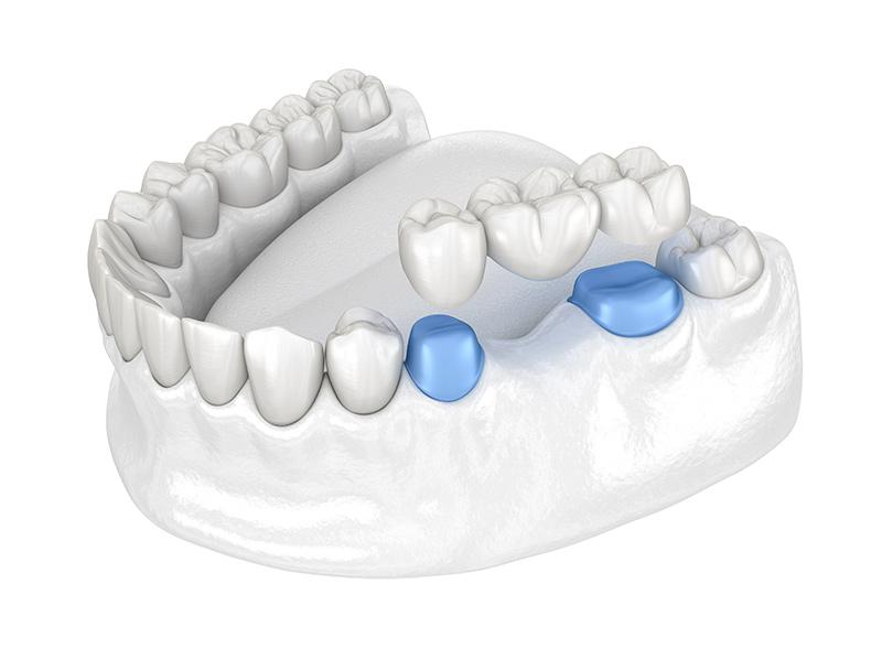 ponti-dentali-dentista-a-roma