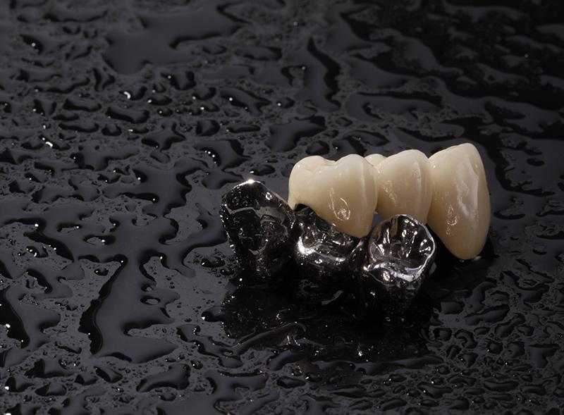 ponti-metallo-ceramica