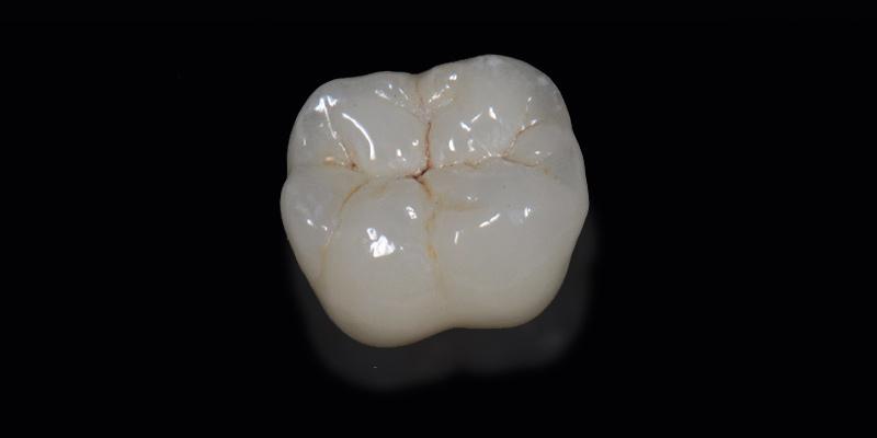 protesi-dentali-corone-dentali-roma