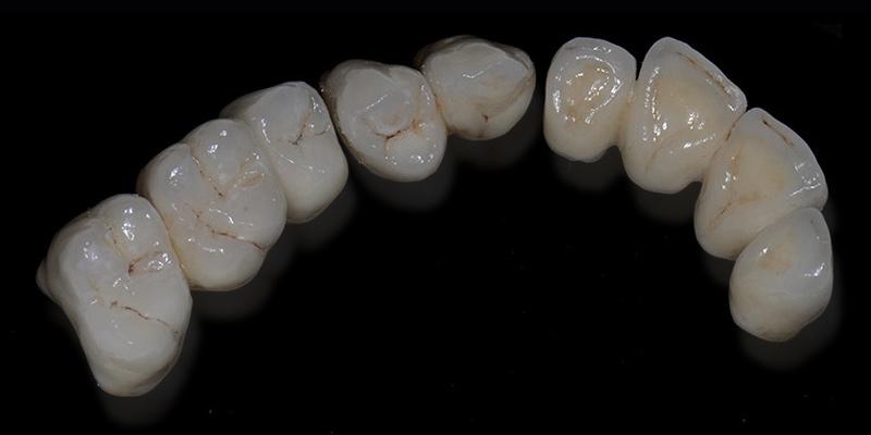 protesi-dentali-ponti-dentali