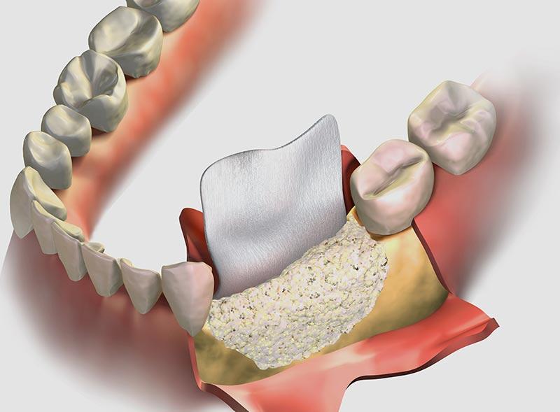 rigenerazione-ossea-guidata-dentista-a-roma