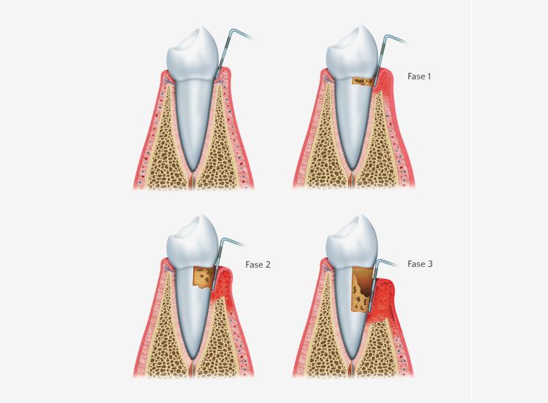 sintomi-parodontite