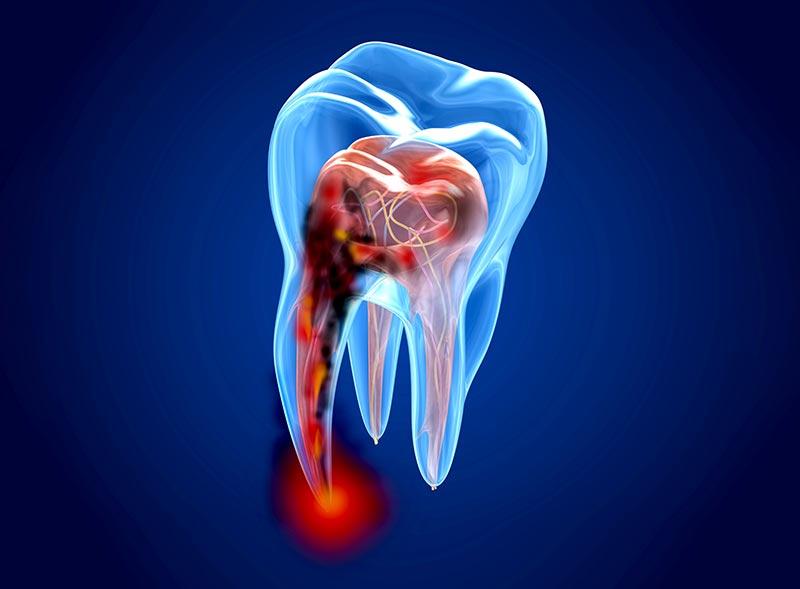trattamento-endodontico-roma
